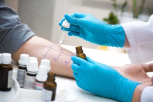 Allergy Test Immunotherapy on man's arm